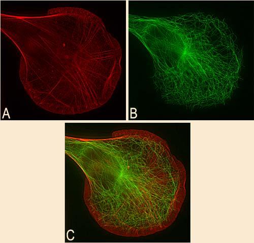 Причины старения организма. Почему пептид Аматокин и Гексапептид 20 важены для стареющей кожи?