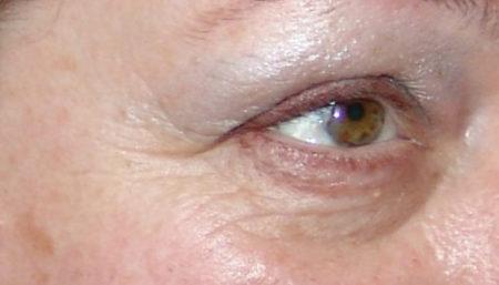 Причины старения организма. Почему пептид Аматокин и Гексапептид 20 важны для стареющей кожи?