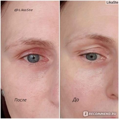 Belle-Vue-Derme до и после применения