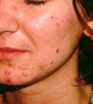 Крема против акне, результаты клинических испытаний.      Эффективность превзошла все ожидания!